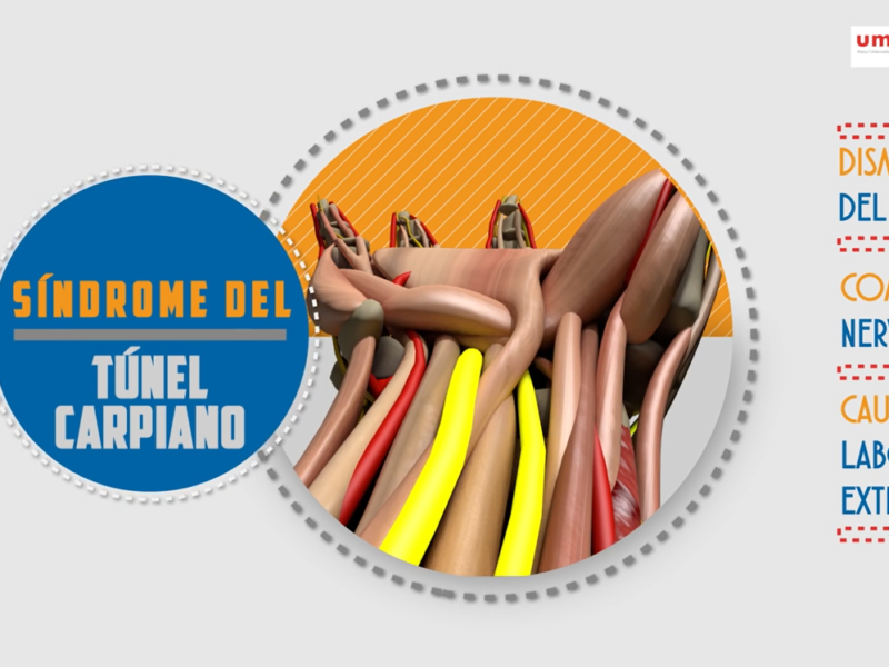Vídeo infográfico Síndrome del Tunel Carpiano (Premio a Mejor Audiovisual) – Umivale